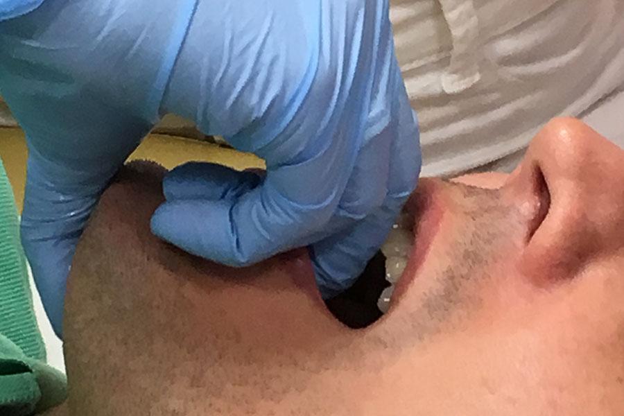 Terapia punktów spustowych stawu skroniowo żuchwowego