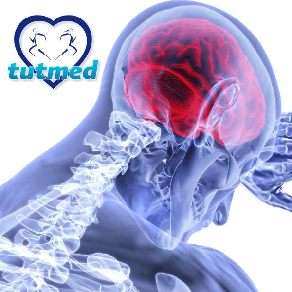 Rehabilitacja poudarze mózgu